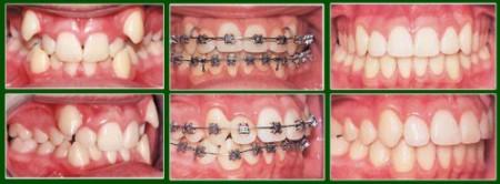 Chọn lựa niềng răng cải thiện hàm răng mọc chen chúc