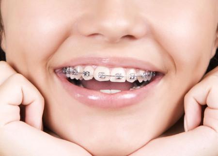 Thẩm mỹ 4 răng cửa hô có cần phẫu thuật không ?