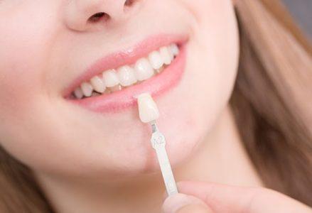 Bọc răng sứ veneer có tốt không ?