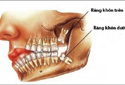 Nhổ răng khôn có nguy hiểm không