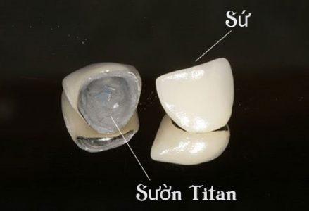 răng sứ titan có tốt không