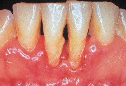 Triệu chứng viêm chân răng