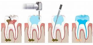bọc răng sứ có phải lấy tủy