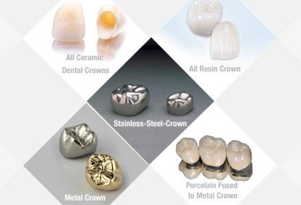 chi phí các loại răng sứ thẩm mỹ