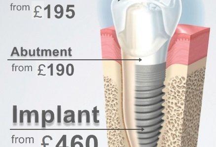 chi phí cao của implant nha khoa