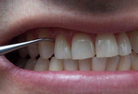 có nên cạo vôi răng không