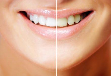Những điều bạn cần tìm hiểu trước khi tẩy trăng răng