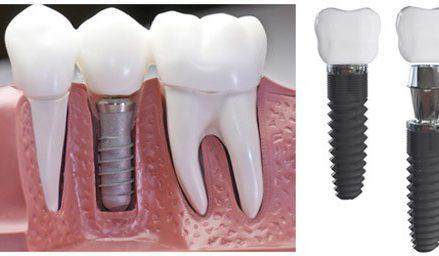Giúp cải thiện những chiếc răng bị mất