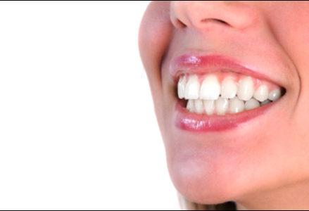 ưu điểm của tẩy trắng răng tại nhà