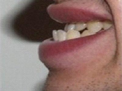 Phương pháp giúp bạn có được một hàm răng đẹp