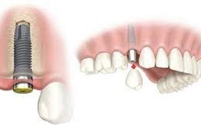 Kỹ thuật cấy ghép răng nhân tạo