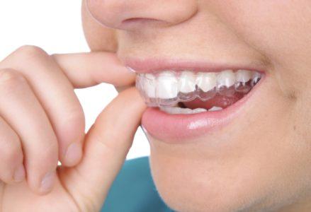 niềng răng có hại không