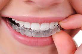 Răng mòn mặt nhai nên làm gì 5
