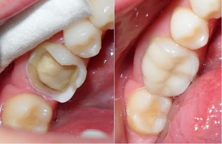 Răng mòn mặt nhai nên làm gì 6