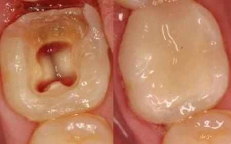 Cấu tạo của răng và quá trình hình thành sâu răng 2