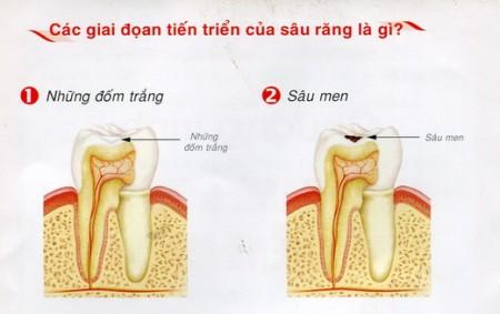 Cấu tạo của răng và quá trình hình thành sâu răng 4