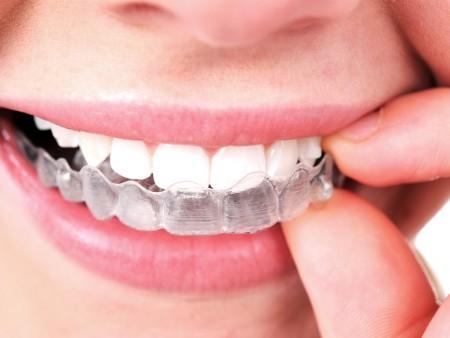 giá niềng răng không mắc cài invisalign