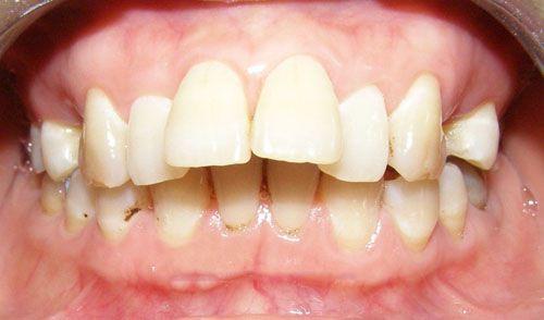 Vì sao răng bạn bị hô ? - Nha khoa thẩm mỹ