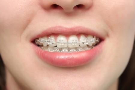 niềng răng khểnh giá bao nhiêu