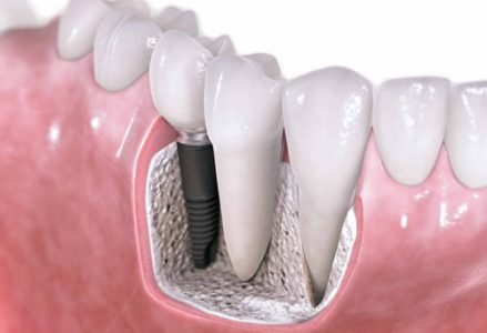 Những trường hợp được và không được trồng răng implant