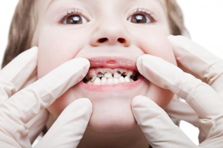 Vì sao răng trẻ bị đen 1