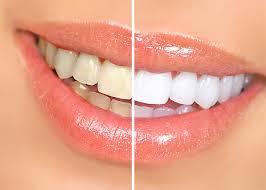 Bạn nên tẩy trắng răng để có nụ cười trắng sáng