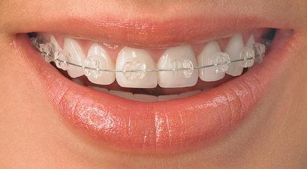 Hai phương pháp chính trong niềng răng