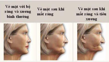 Những di chứng sau khi mất răng không được phục hình