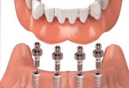 Dắt thức ăn bên dưới phục hình implant