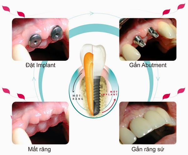 Cấy ghép implant như thế nào? 2