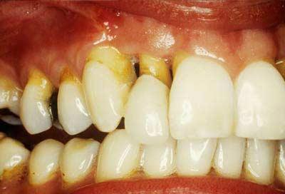 Mất răng do nha chu có cấy ghép implant được không?