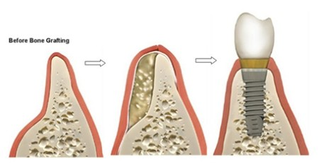 Ghép xương trong phục hình răng giả có nguy hiểm không?