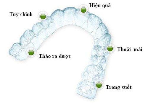 Niềng răng bằng nhựa