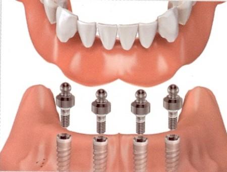 cấy ghép implant có tốt không