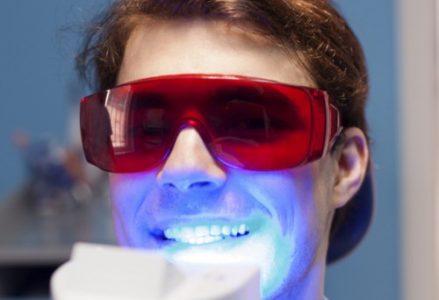 Chi phí tẩy trắng răng bao nhiêu tiền