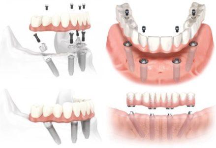 Chỉ định và chống chỉ định của implant