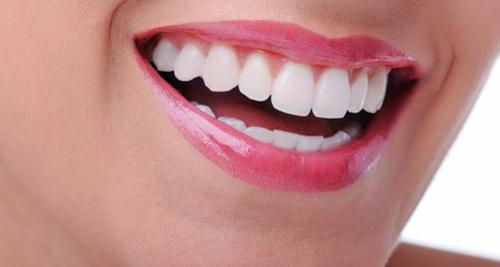 Tại sao nên lấy cao răng bằng máy siêu âm ?