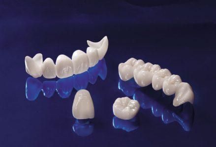 Bọc răng sứ vĩnh viễn bao nhiêu tiền một răng ?
