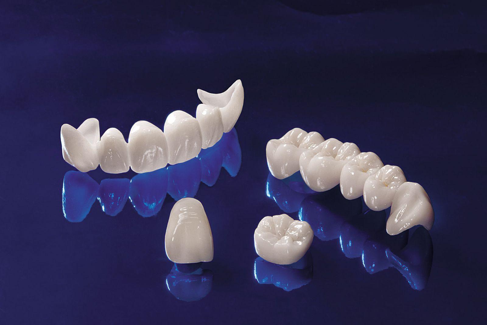 Image result for răng toàn sứ