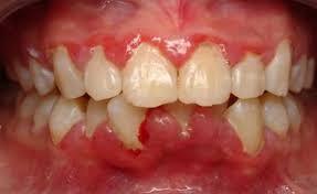 cách trị sưng nướu răng
