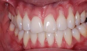 nướu răng