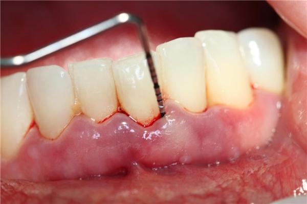 cạo vôi răng có bị chảy máu răng không
