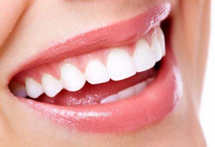 Niềng răng có hết hô không ?