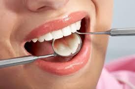 cạo vôi răng mất bao lâu