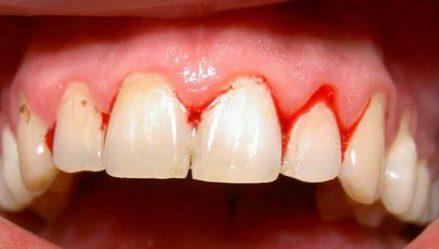 chảy máu chân răng thiếu vitamin gì