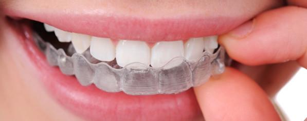 niềng răng trong suốt bao nhiêu tiền