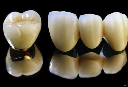 Độ bền của răng sứ titan