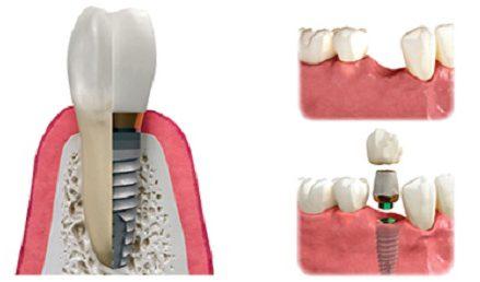 quá trình cấy ghép implant cho răng hàm