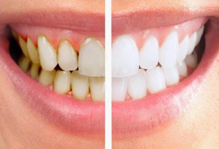Tẩy trắng răng có chi phí bao nhiêu ?