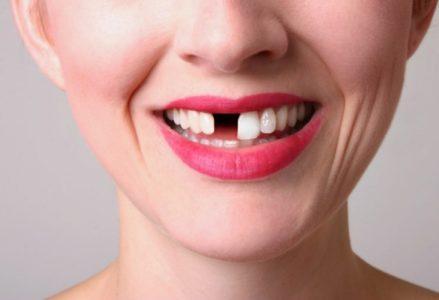 rụng răng sớm
